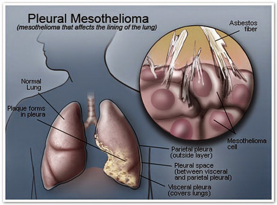 glass shards similar to Asbestos in the lung PHOTO: MESOTHELIOMA.COM